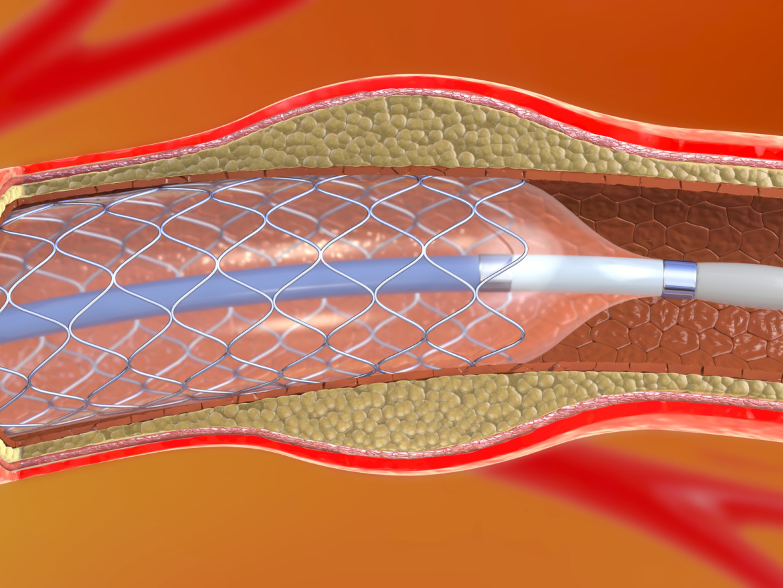 Bei einem großen Aneurysma besteht die Gefahr, dass es reißt. Ein Stent in der Arterie beugt vor.