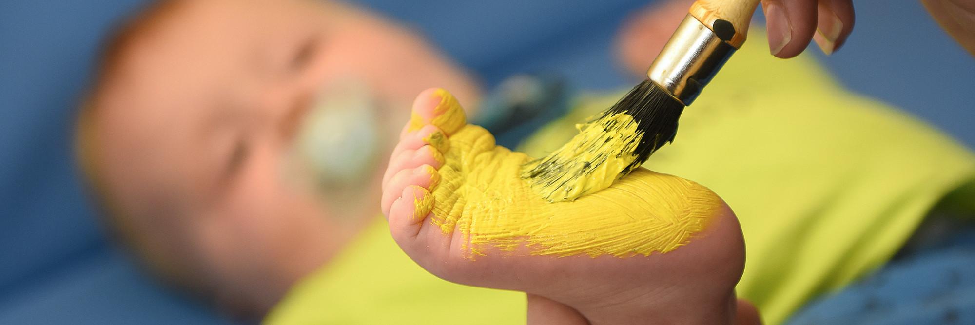 Der Fuß eines Kleinkindes wird im Rahmen einer Therapie mit gelber Farbe bepinselt.