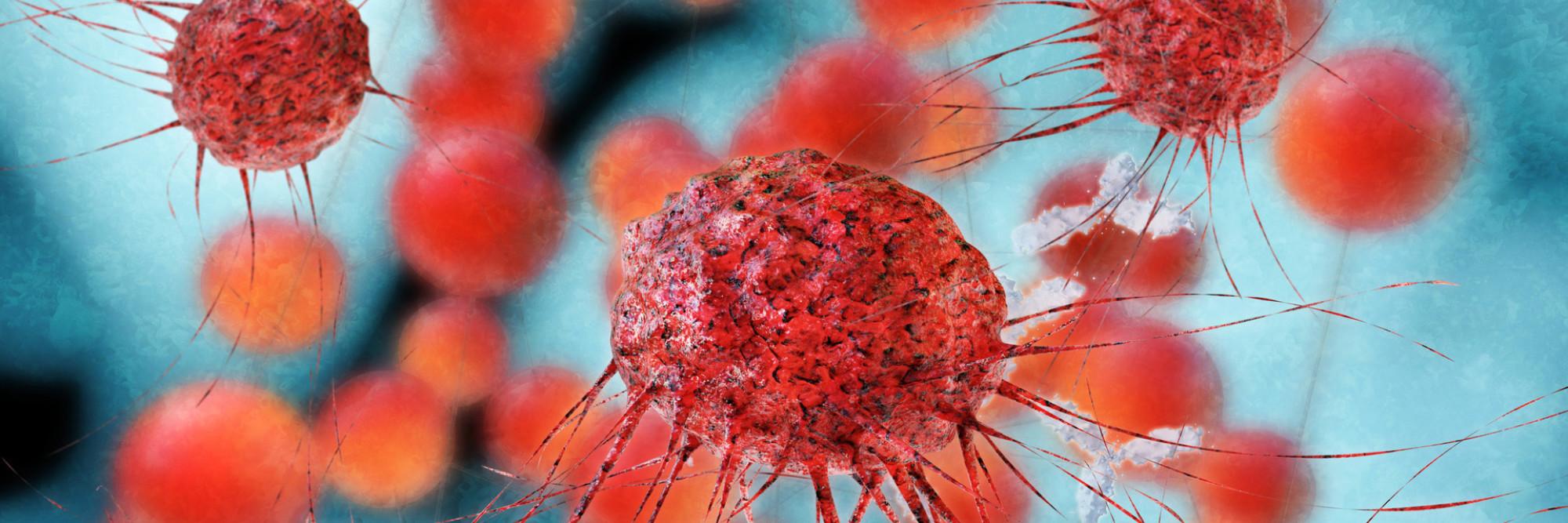 Mikroskopische Aufnahme von Krebszellen.