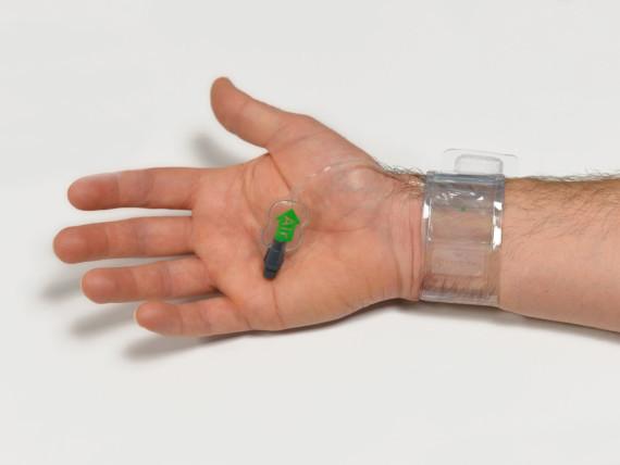 Bild eines sogenannten transradialen Zugangs - seit 2012 wird die Herzkatheteruntersuchung im St.-Antonius-Hospital routinemäßig über das Handgelenk durchgeführt.