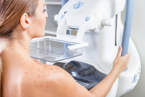 Patientin beim Mammographie-Screening.