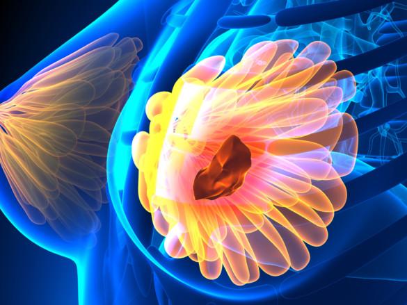 Medizinisch-stilisierte Darstellung einer weiblichen Brust