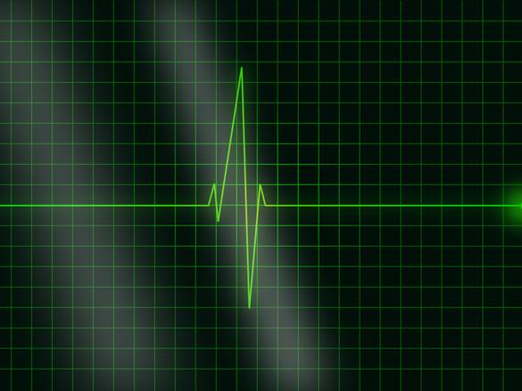 Stilisierte Kurve eines EKG.