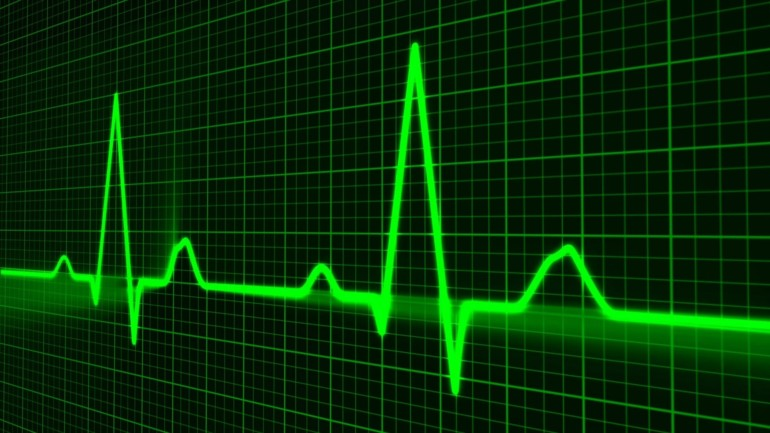 Eine EKG Kurse (Puls).